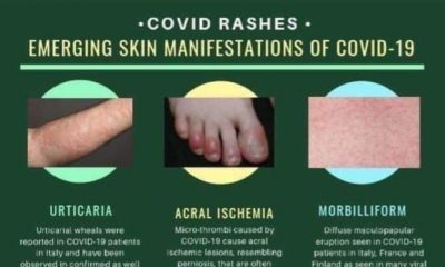 JUST IN: COVID Toes, Rashes Emerge As New Symptoms Of The Deadly Virus