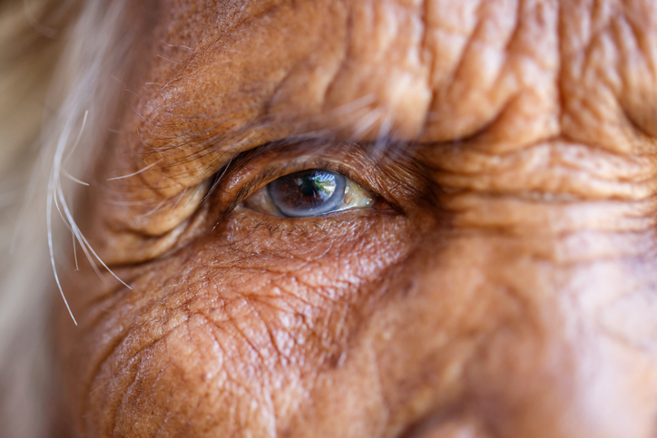 6 Ways You Can Reduce Wrinkles